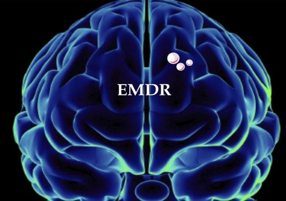 content what is emdr